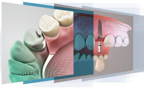 dentalmaster-logiciels-dentaires